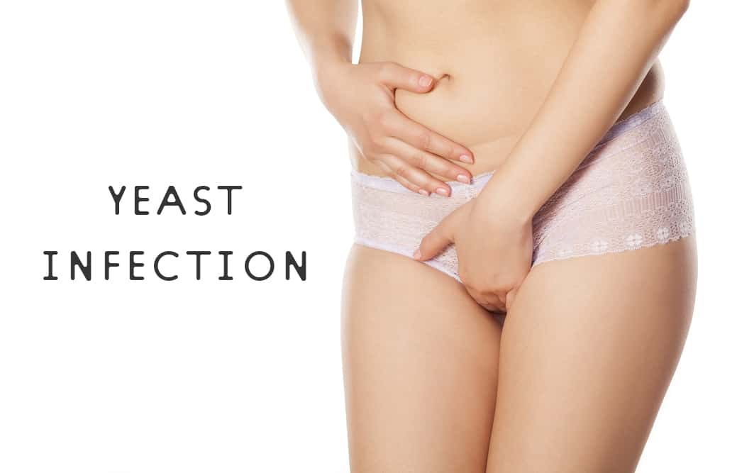 Yeast Infections And You: The Basic Facts